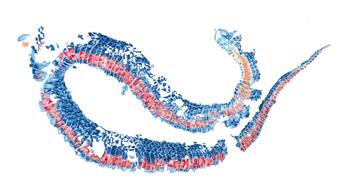 Snake Skin, inspired by Maplewood State Park. Brandi Malarkey, artist. ItsAllMalarkey.com